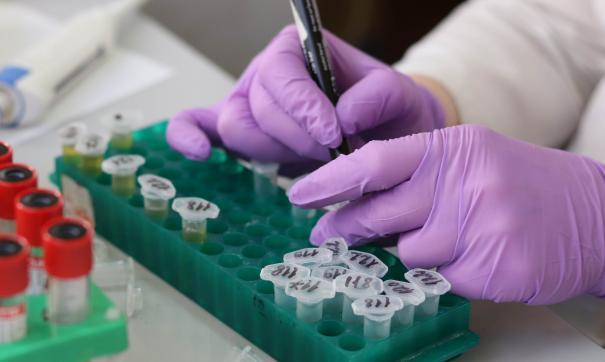 Повторный тест показал отрицательный результат заражения COVID-19