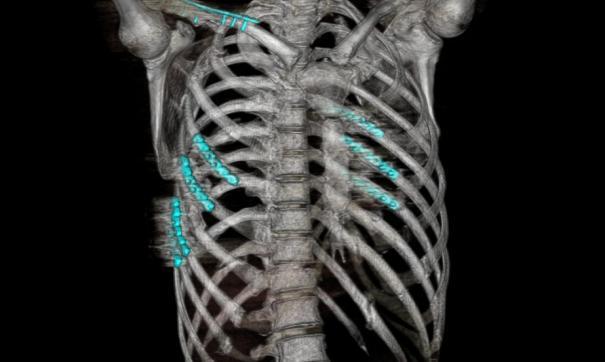 Томские врачи провели операцию по остеосинтезу ребер водителю, сломавшему их в ДТП