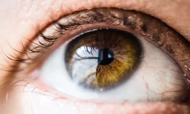 Врач рассказал о том, что покраснение глаз является симптомом опасного заболевания